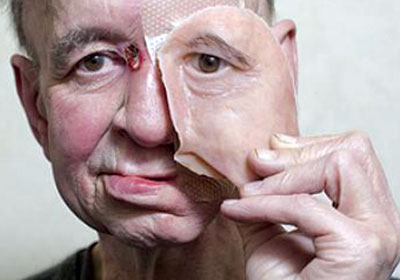 Fig. 1: A prosthetic face created using 3D printing (Source: http://frenchtribune.com)