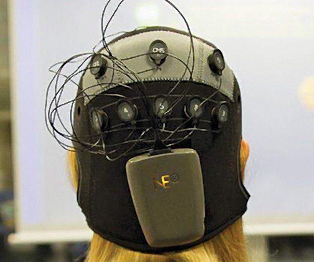 Electric Brain Stimulation