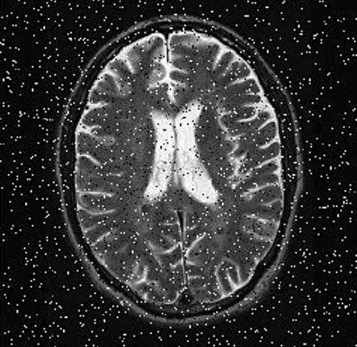 Another image (MRI image) with salt and pepper noise