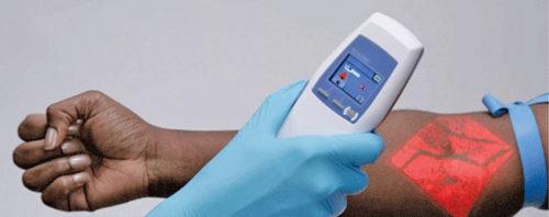 Epidermal medical applications