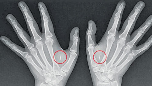 X-ray showing microchips implanted in both hands to unlock doors without keys