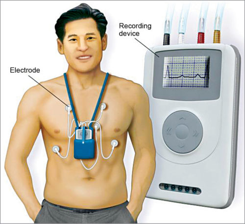 Heart holter, a wearable device that keeps track of the heart rhythm (Credit: www.mayoclinic.org)