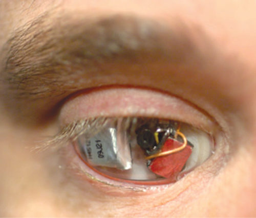 A man wearing a specialised camera for an eye (Credit: http://s.telegraph.co.uk)