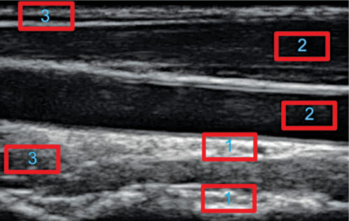Image showing different echo intensity areas