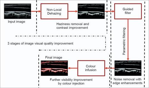Ultrasound image super-resolution