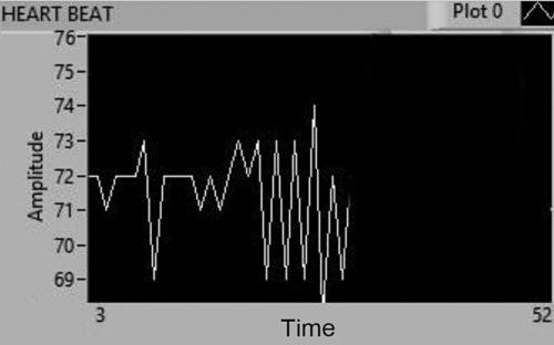 Observed heartbeat sensor data