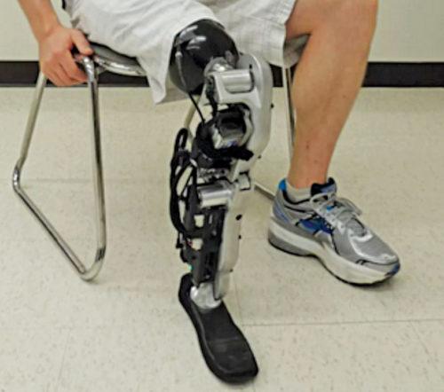 A bionic leg