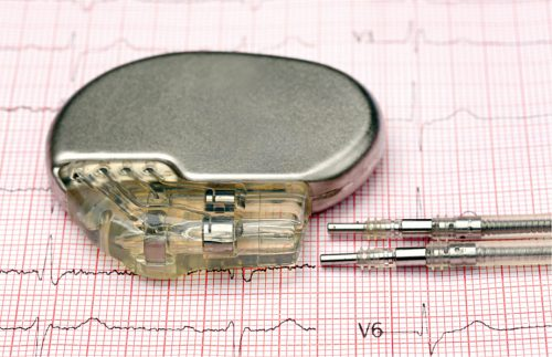Diamond batteries charge for thousands of years and are apt for devices like pacemakers (Source: www.bhf.org.uk)