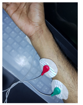 Wireless EMG Controlled Prosthetic Hand working