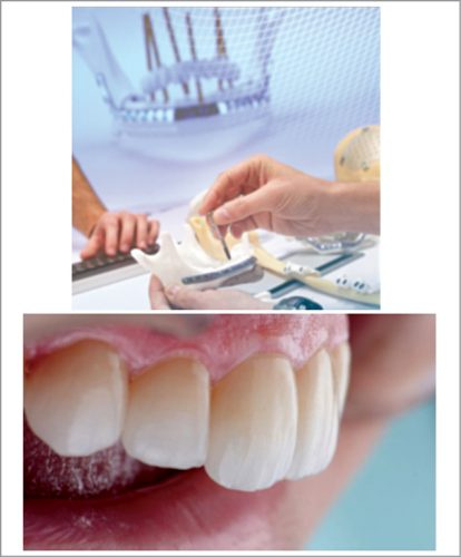 Dental implant (Courtesy: Avinent)